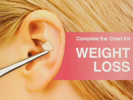 Acupuncture, Weight Loss, Wellness Coaching and Treating the Whole Body