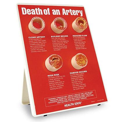 """Death of an Artery - 9"""" x 12"""""""