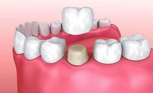 3D render of dental crown