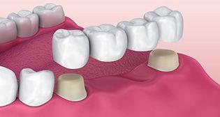3D render of a dental bridge
