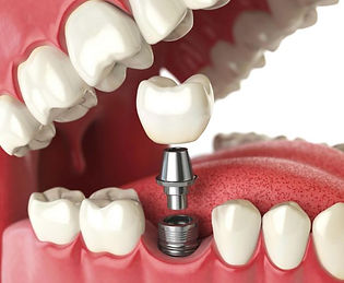 3D render of dental implant, abutment, and crown