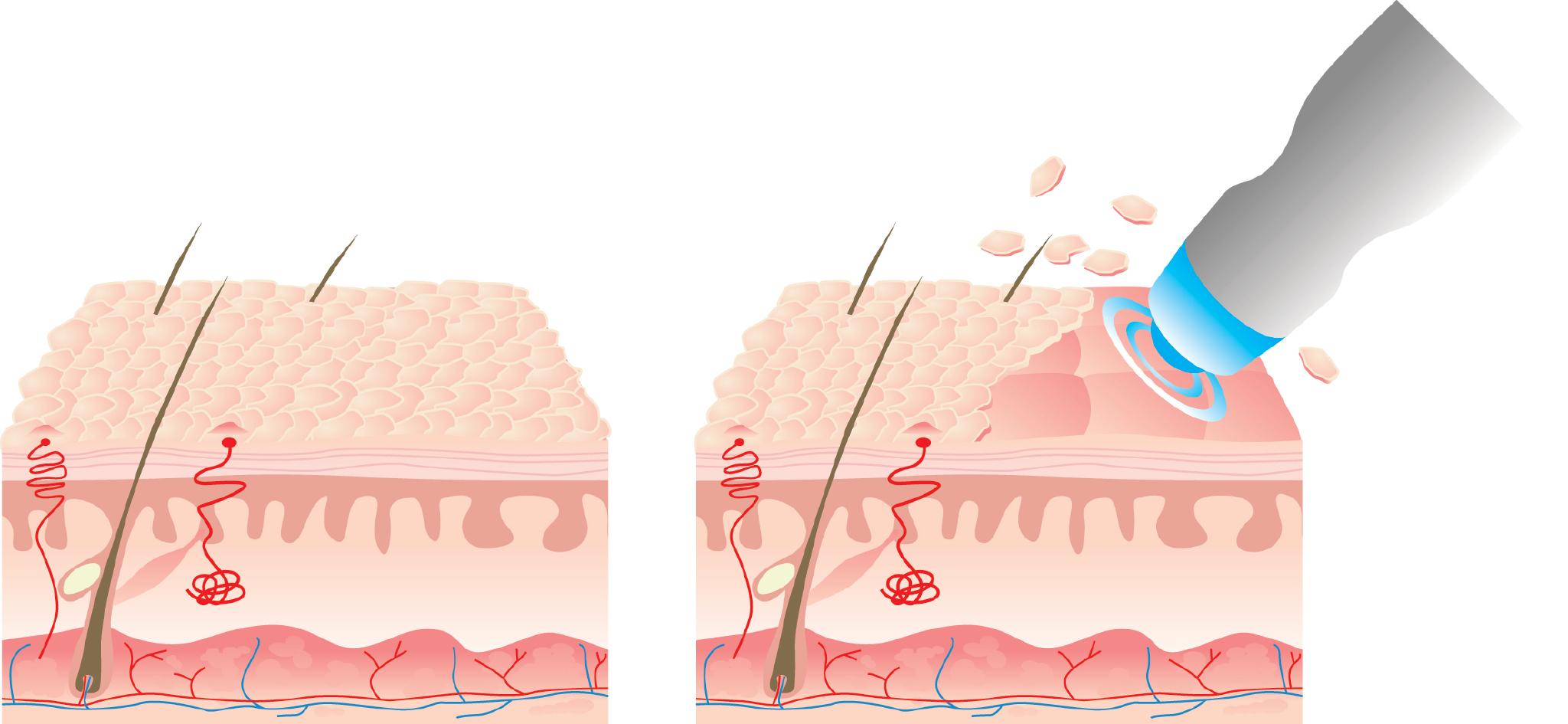 Microdermabrasion Diagram.jpg