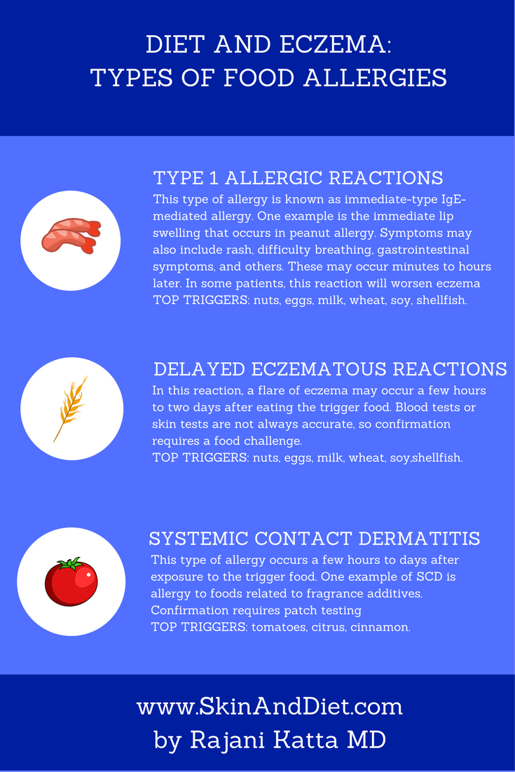 These are the three main type of food allergies