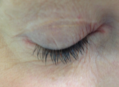 Red eyelids: tips for facial and eyelid contact dermatitis