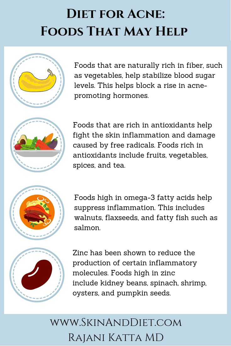 Infographic on a diet for acne with foods that may help, including fiber, antioxidants, omega-3 fatty acids, and zinc