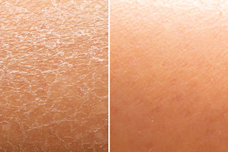 Before and after skin moisturization is