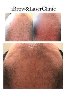 Fotona Hair Regeneration