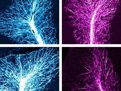 La pérdida de hormonas en la placenta estimula rasgos similares al autismo en ratones