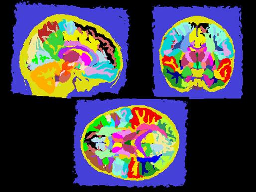 La ansiedad específica del autismo está relacionada con las diferencias en la amígdala