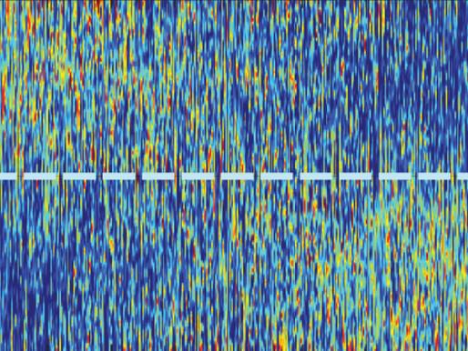 Una red neuronal capta las neuronas ruidosas en un modelo de ratón con autismo
