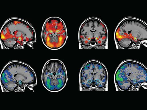 Cómo los científicos del autismo abordan el problema de la replicación de las imágenes cerebrales