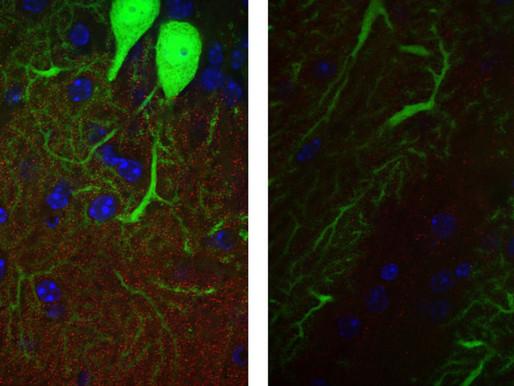 El solapamiento molecular vincula la esclerosis tuberosa y el X frágil