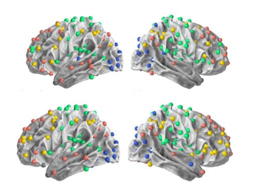 Los adultos mayores con autismo pueden conservar una gran capacidad visual