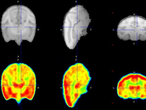 Un fármaco mejora la cognición de los hombres con síndrome del cromosoma X frágil
