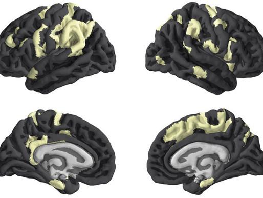 El cromosoma X ejerce una influencia adicional en el desarrollo del cerebro
