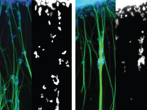 Un inhibidor de proteínas normaliza la migración neuronal en un modelo organoide de autismo