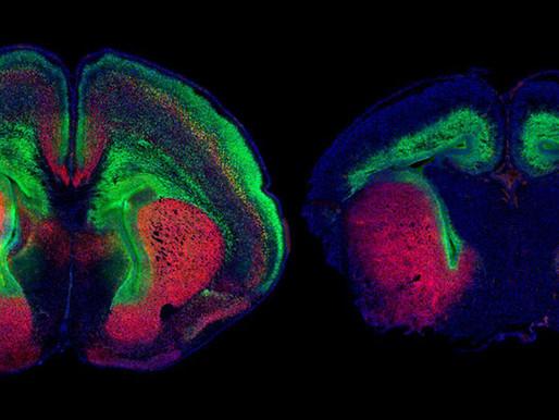 La señalización del crecimiento revierte la microcefalia en un modelo de ratón con autismo