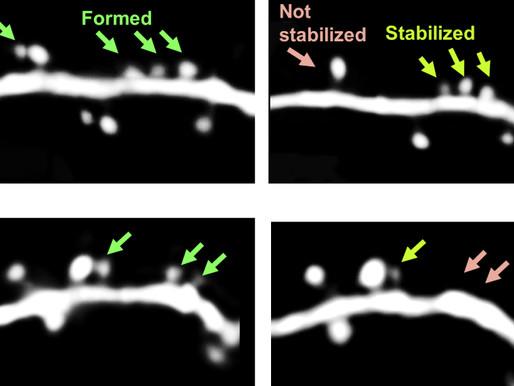 El bloqueo de una vía clave revierte cambios cerebrales y conductuales en modelos de ratón autistas