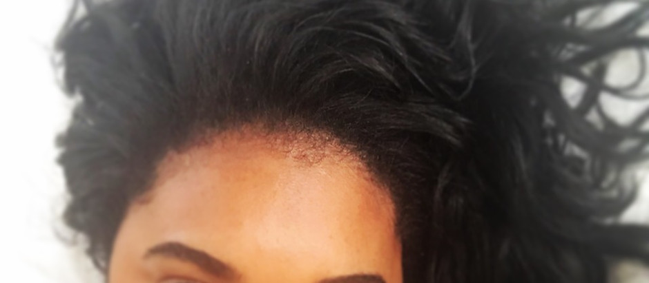 Dry Hair Remedies For Coarse Hair Texture Type