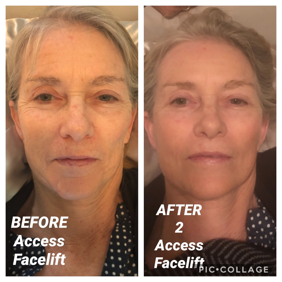 Access facelift before after 12:14:19 cl
