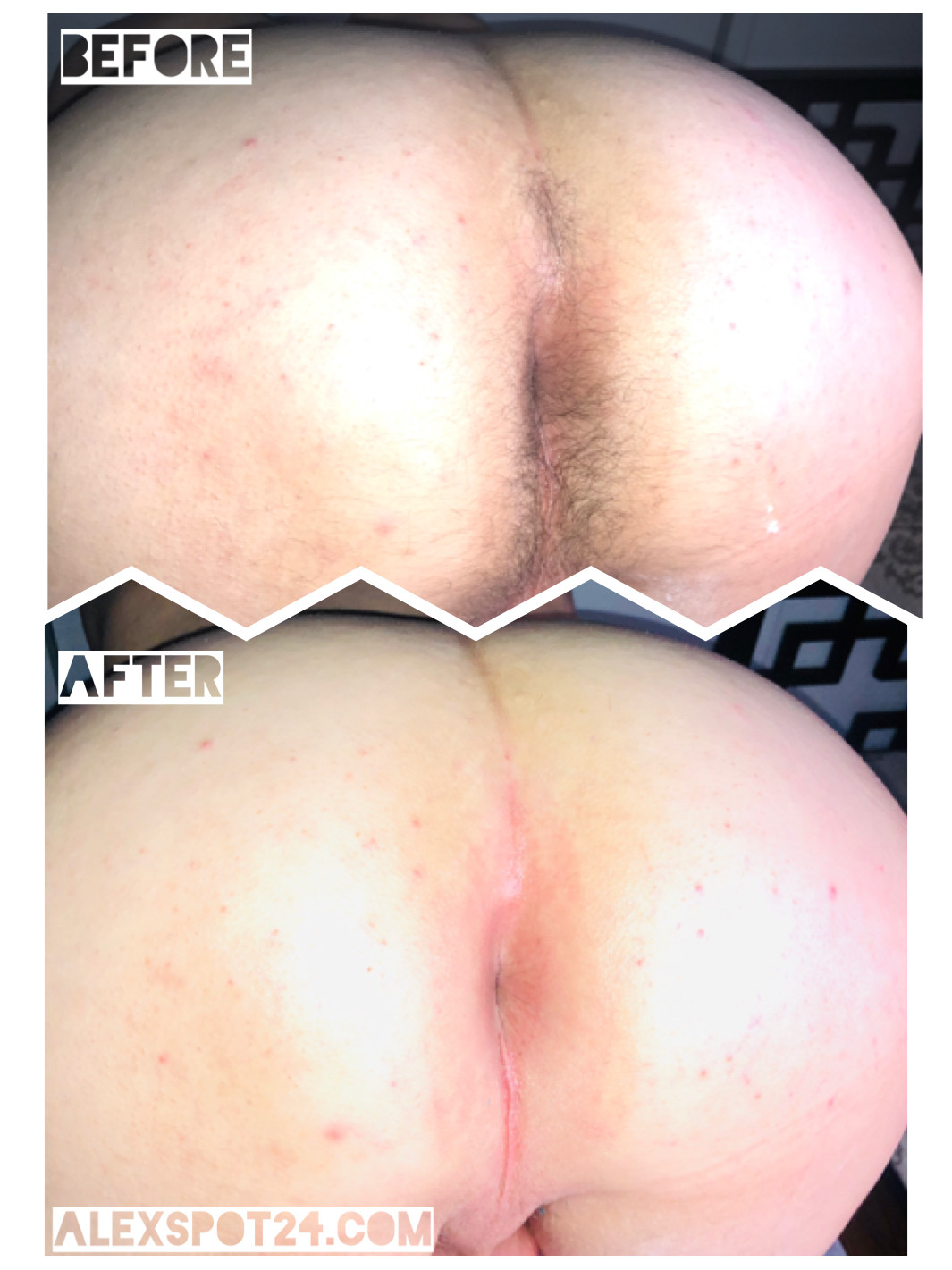 Very grateful photos of anal waxing and