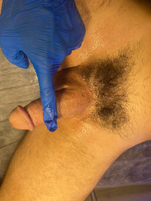 balls scrotum waxing for men