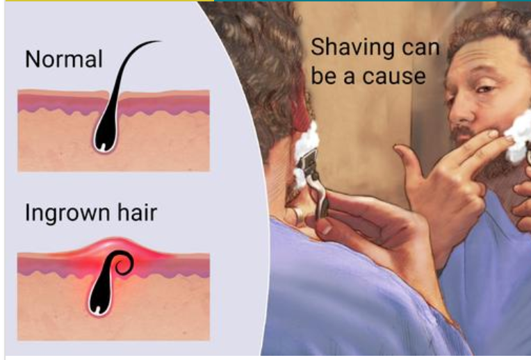 Ingrown hair Manscaping waxing for men