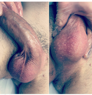brazilian wax before and after_edited.pn
