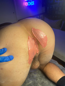 manzilian waxing after result