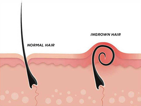 How to Prevent Ingrown Hair after Male Body Waxing or Trimming  Services