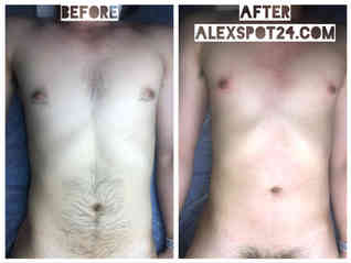 Male Body Chest & Stomach Waxing
