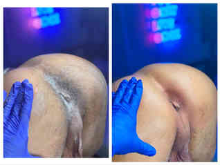 male body trimming Butt waxing alexspot2