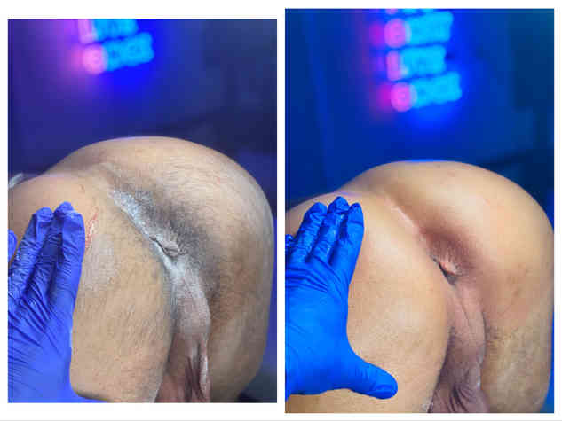 male body trimming Butt waxing alexspot2