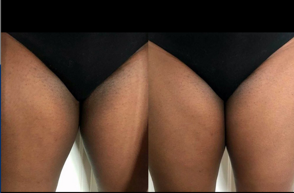 skin lightening & anal bleaching alexspot24.png