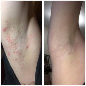 under arms bleaching & anal bleaching alexspot24.png