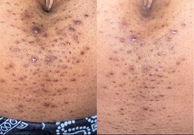 skin lightening & anal bleaching, acne removal alexspot24.png