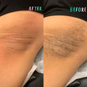 Underarms Waxing before after