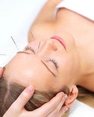 facial-acupuncture-e1552246590133.jpg