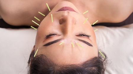 Woman+with+facial+acupuncture+needles.jp