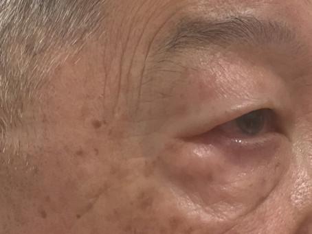 眼瞼下垂手術の様子👀✂