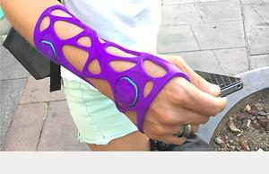3D PRINTING IN MEDICAL