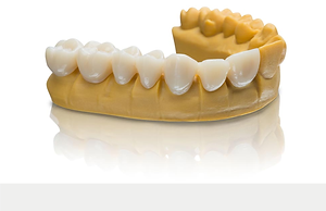 3D PRINTING IN DENTAL