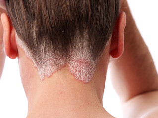 Psoriasis and Ayurveda  Psoriasis is a chronic (long-lasting) skin disorder that causes scaling and