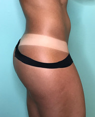 spray tan tanlines- the shady sun
