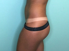 dark spray tan tanlines- the shady sun