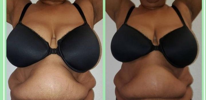 Lymphatic Breast Lift