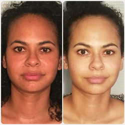 Jade Sinus Facials