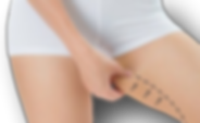 Thigh-Fat-400x242_clipped_rev_1.png