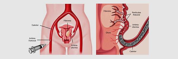 mioma uterino.png
