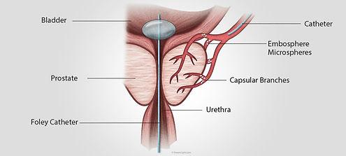 prostata copy.jpg